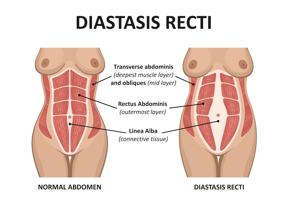 Rééducation abdominale Diastasis Recti